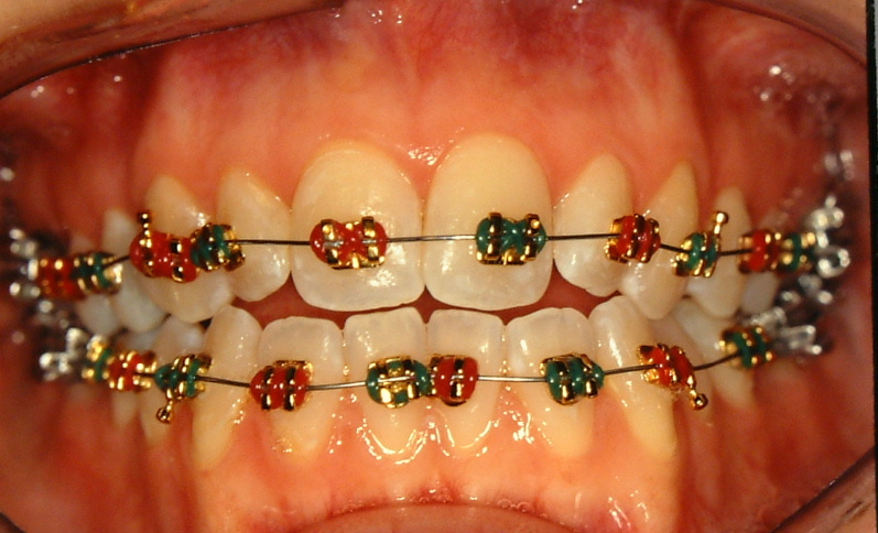 Gold Plated Braces