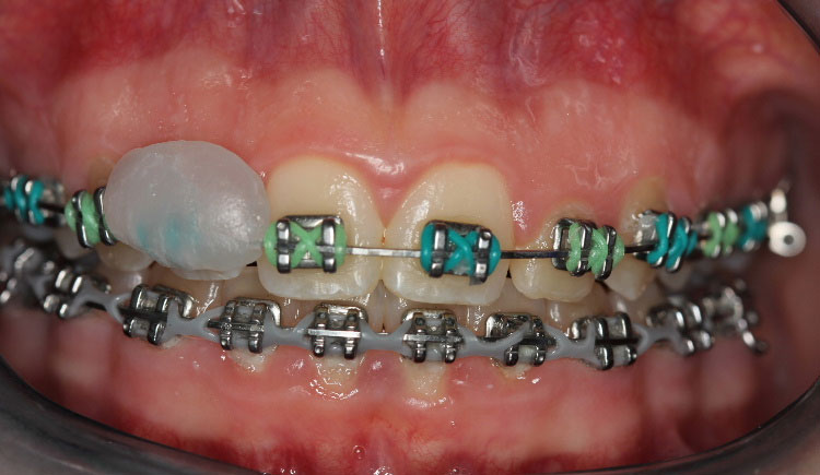 Wax On Brackets